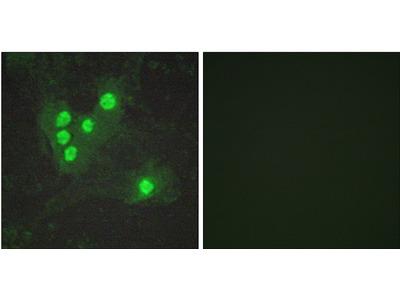 RAC-Alpha Serine/Threonine-Protein Kinase Phospho-Ser473 (AKT1 pS473) Antibody