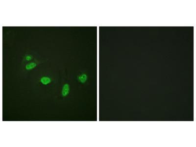 V-Ets Erythroblastosis Virus E26 Oncogene Homolog 1 (Avian) Phospho-Thr38 (ETS1 pT38) Antibody