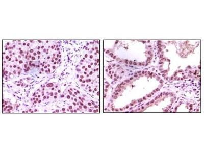 Lysine-Specific Histone Demethylase 1A (LSD1) Antibody