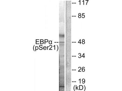 C/EBP alpha (Phospho-Ser21) Antibody