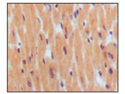 Brain Natriuretic Peptid (BNP) Antibody