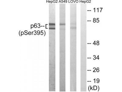 p63 (Phospho-Ser395) Antibody