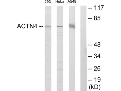 ACTN1 / 2 / 3 / 4 Antibody