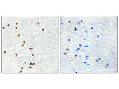 ZIC1/2/3 Antibody