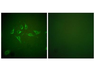 Nitric Oxide Synthase 2, Inducible / iNOS (NOS2) Antibody
