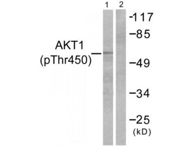 Akt1 (Phospho-Thr450) Antibody