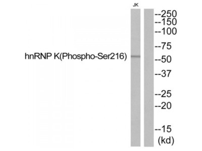 hnRNP K (Phospho-Ser216) Antibody