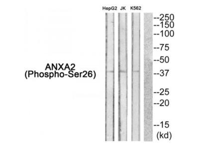Annexin A2 Phospho-Ser26 (ANXA2 pS26) Antibody
