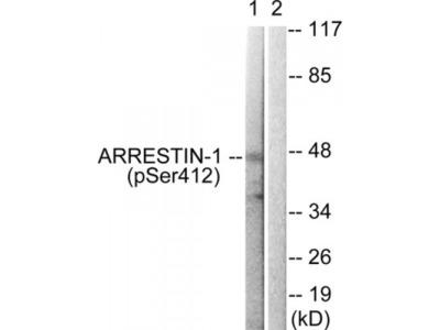 ARRB1 (Phospho-Ser412) Antibody
