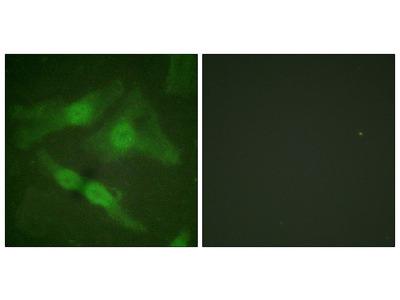 PKC zeta (Phospho-Thr410) Antibody