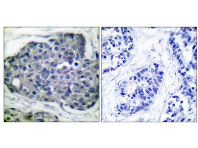 Acetyl-CoA Carboxylase (Phospho-Ser80) Antibody