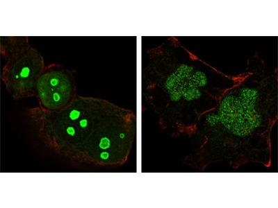 Nucleophosmin (NPM1) Antibody