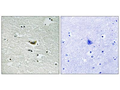 CK-1 alpha (Phospho-Tyr294) Antibody