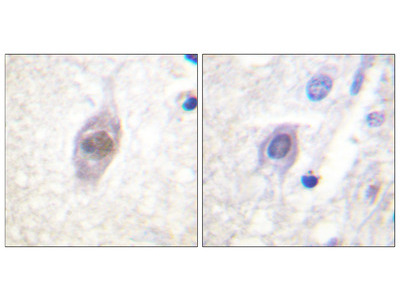 Adenomatous Polyposis Coli Protein (APC) Antibody