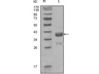 Tyrosine-Protein Kinase ABL1 (ABL1) Antibody