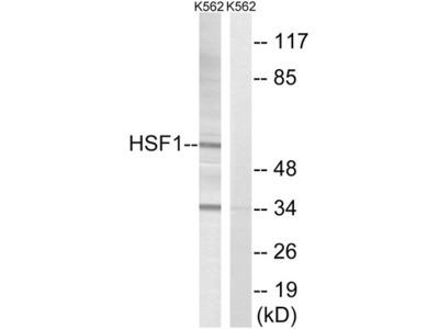 Heat Shock Factor Protein 1 (HSF1) Antibody
