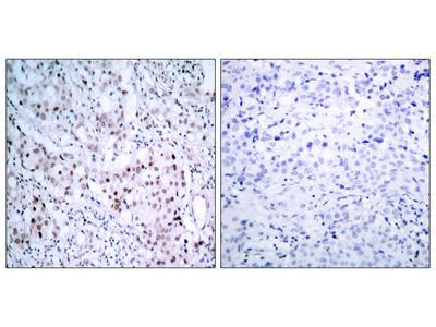 c-Jun (Phospho-Ser63) Antibody