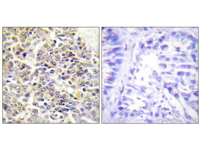 Apoptosis-Associated Speck-Like Protein Containing A CARD (ASC) Antibody