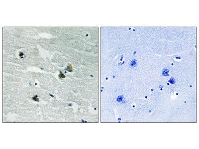 MER / SKY (Phospho-Tyr749 / 681) Antibody