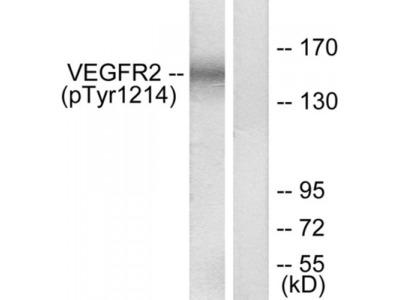 VEGFR2 (Phospho-Tyr1214) Antibody