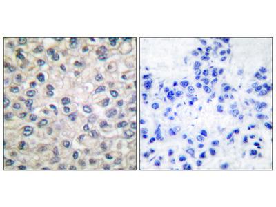 Catenin alpha 1 Antibody