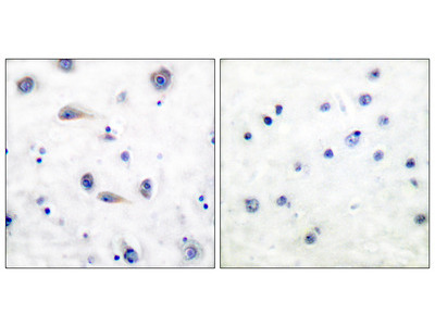 Trk B (Phospho-Tyr515) Antibody