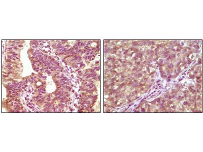 Serine/threonine-Protein Kinase B-Raf (BRAF) Antibody