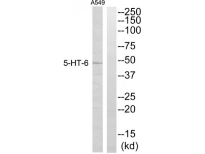 5-Hydroxytryptamine Receptor 6 / 5-HT6 (HTR6) Antibody