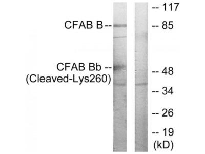 CFAB Bb (Cleaved-Lys260) Antibody