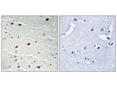 AKT1/2/3 (Phospho-Tyr315/316/312) Antibody