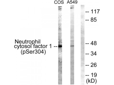 Neutrophil Cytosol Factor 1 (Phospho-Ser304) Antibody