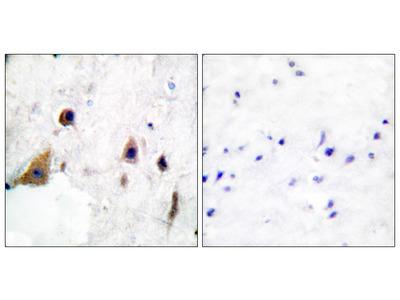 DARPP-32 (Phospho-Thr75) Antibody