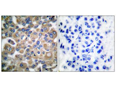 Fibrillin 1 (FBN1) Antibody
