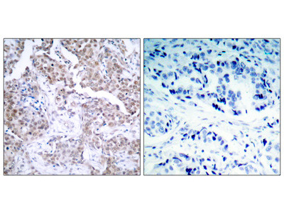 Cellular Tumor Antigen P53 Phospho-Ser15 (TP53 pS15) Antibody