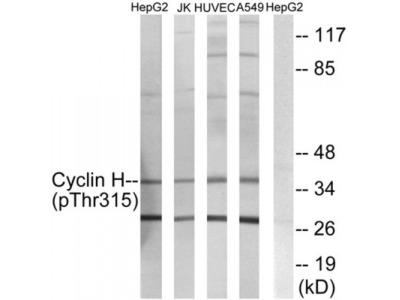 Cyclin H (Phospho-Thr315) Antibody