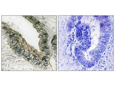Eukaryotic Translation Initiation Factor 2-Alpha Kinase 3 (E2AK3) Antibody