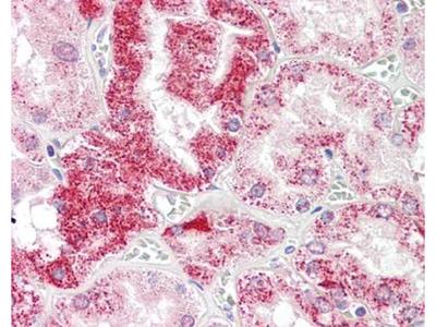 SIGLEC-15 antibody