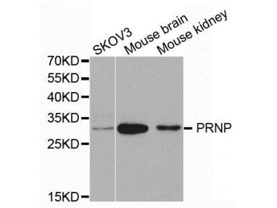 PRNP antibody