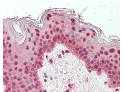 TIAR antibody