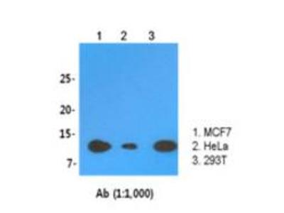 SnRNP antibody