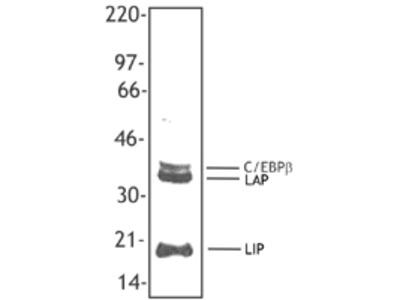 C/EBP Beta / CEBPB Monoclonal Antibody