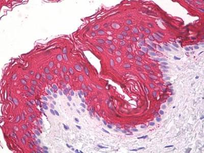 Cytokeratin 10 antibody