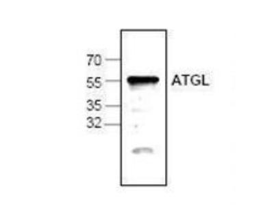 ATGL antibody