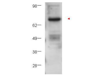 Protein Kinase C Beta Antibody