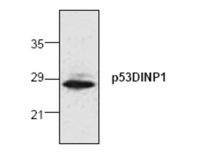 anti TP53INP1