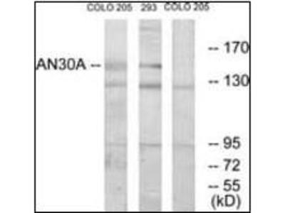 NY-BR-1 antibody