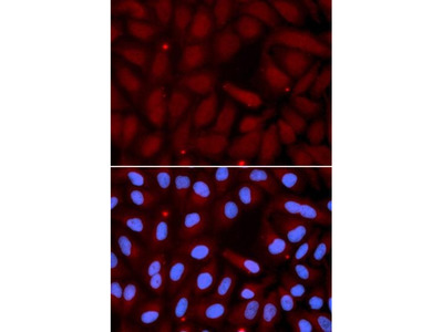 SFTPC antibody