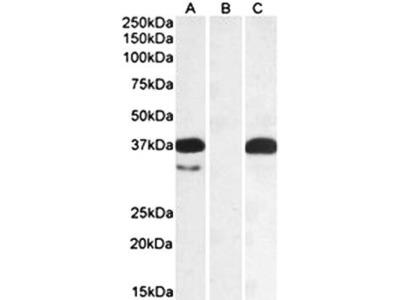 PIM2 antibody
