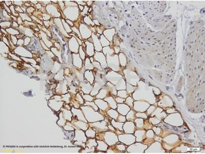 anti-Perilipin 1 (N-terminus) mouse monoclonal, PERI 112.17, supernatant
