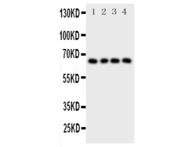 Anti-Parathyroid Hormone Receptor 1/PTH1R Antibody